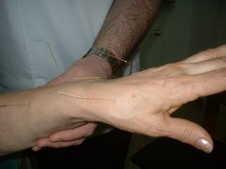 Akupunktura – sl. 3